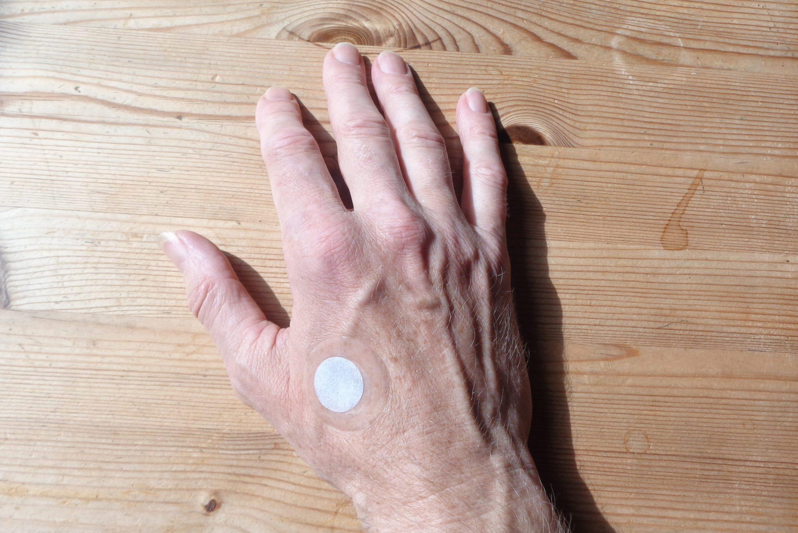 Lifewaves Aeon-plaster på højre hånd.